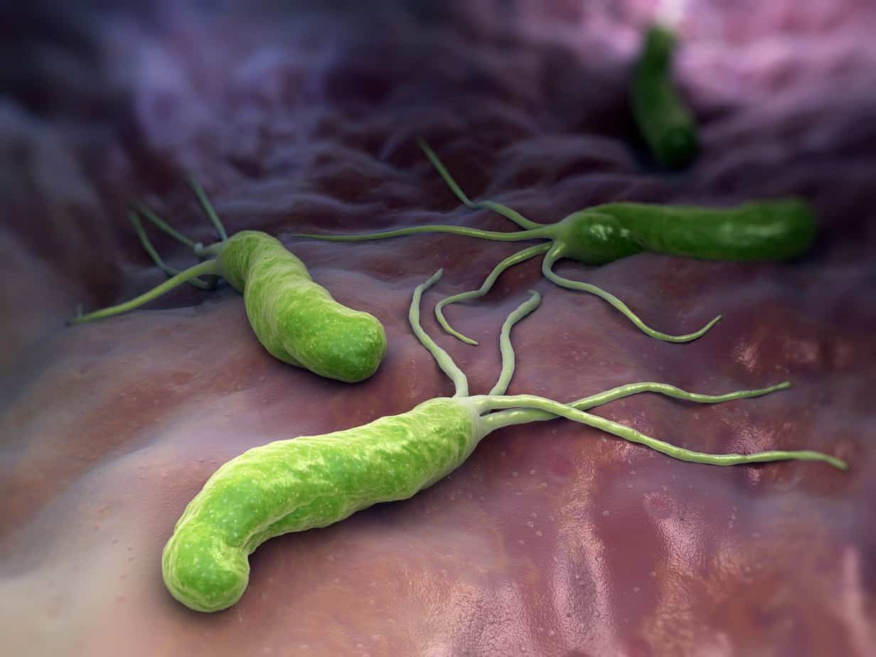 Helicobacter pylori what causes IBS