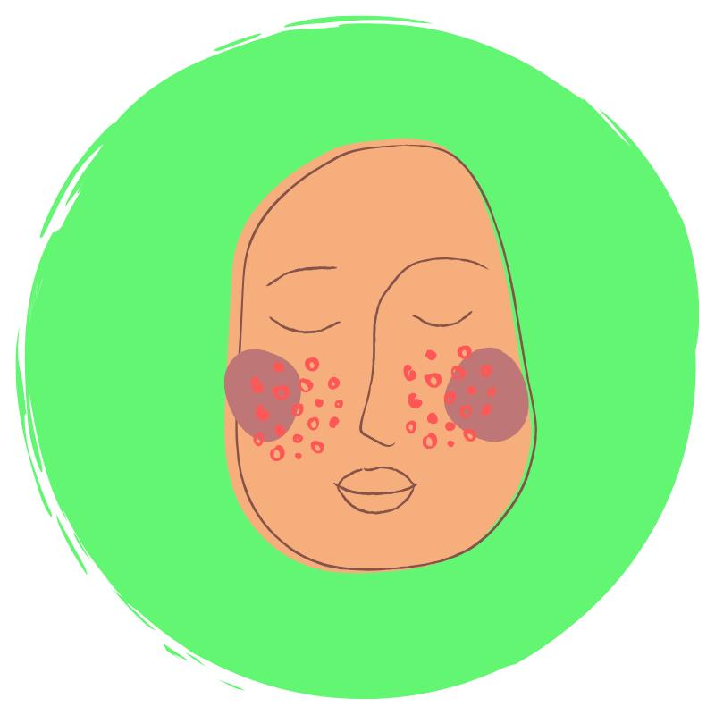 Skin-problems