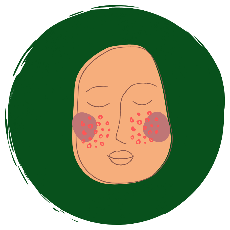 Skin-symptoms